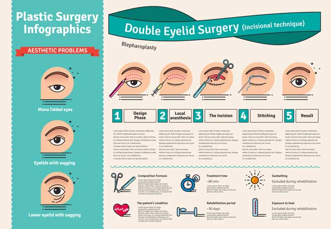 Infografik zur Augenlidstraffung